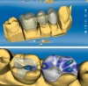 Dental cad/cam  tecrübeli personeli